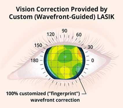 Standard-Lasik-vs-Standard-Lasik