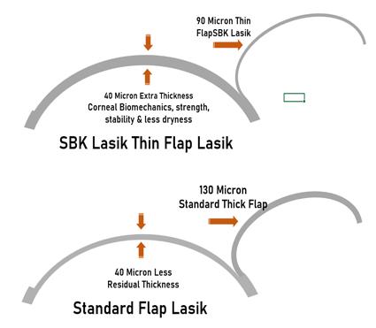 SBK-thin-flap-Lasik-vs-Standard-Lasik